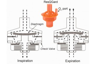 RFQ story between Buyer and China OEM ventilator diaphragm valve manufacturer